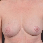 Breast Revision - Case #69 After
