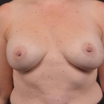 Breast Revision - Case #68 Before