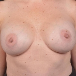 Breast Revision - Case #68 After