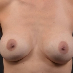 Breast Revision - Case #73 Before