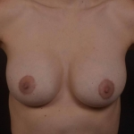 Breast Revision - Case #73 After