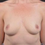 Breast Augmentation Silicone Gel - Case #80 Before