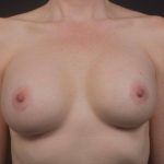 Breast Augmentation Silicone Gel - Case #80 After