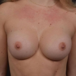 Breast Augmentation Silicone Gel - Case #79 After