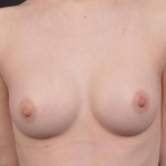 Breast Augmentation Silicone Gel - Case #78 After