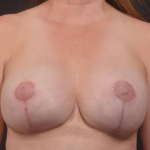 Breast Augmentation Mastopexy Revision - Case #75 After