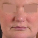 Neck Liposuction for Double Chin Before