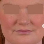 Neck Liposuction for Double Chin After