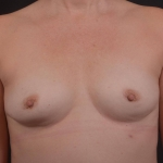 Breast Augmentation Silicone Gel - Case #82 Before