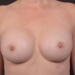 Breast Augmentation Silicone Gel - Case #82 After