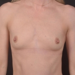 Breast Augmentation Silicone Gel - Case #83 Before