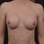 Breast Augmentation Silicone Gel - Case #83 After