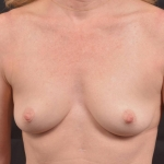 Breast Augmentation Silicone Gel - Case #84 Before
