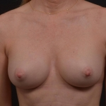Breast Augmentation Silicone Gel - Case #84 After
