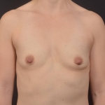 Breast Augmentation Silicone Gel - Case #85 Before