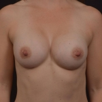 Breast Augmentation Silicone Gel - Case #85 After
