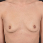 Breast Augmentation Silicone Gel - Case #86 Before