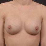 Breast Augmentation Silicone Gel - Case #86 After
