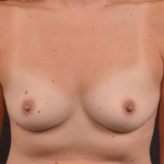 Breast Augmentation Silicone Gel - Case #87 Before