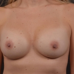 Breast Augmentation Silicone Gel - Case #87 After