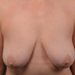Breast Reduction - Case #37 Before