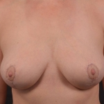 Breast Reduction - Case #37 After
