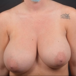 Breast Reduction - Case #38 Before