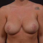 Breast Reduction - Case #38 After