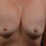 Breast Augmentation Mastopexy Revision - Case #12 Before