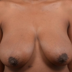 Breast Reduction - Case #39 Before