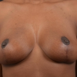 Breast Reduction - Case #39 After