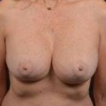 Breast Augmentation Mastopexy Revision - Case #12 After