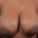 Breast Reduction - Case #40 Before