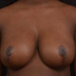 Breast Reduction - Case #40 After