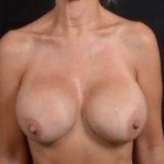 Breast Revision - Case #61 Before