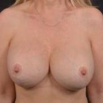 Breast Revision - Case #61 After
