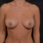 Breast Revision - Case #60 Before