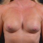 Breast Revision - Case #59 Before