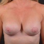Breast Revision - Case #59 After