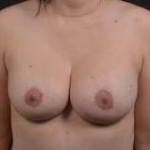 Breast Revision - Case #58 After