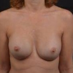 Breast Revision - Case #57 After