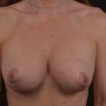Breast Revision - Case #56 Before
