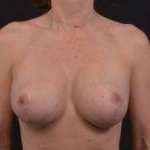 Breast Revision - Case #56 After