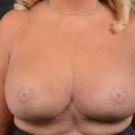 Breast Revision - Case #54 After