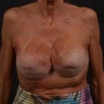 Breast Revision - Case #52 Before