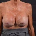 Breast Revision - Case #52 After
