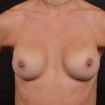 Breast Revision - Case #51 Before