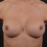 Breast Revision - Case #51 After