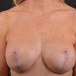 Breast Augmentation Mastopexy Revision - Case #48 Before