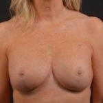 Breast Augmentation Mastopexy Revision - Case #48 After